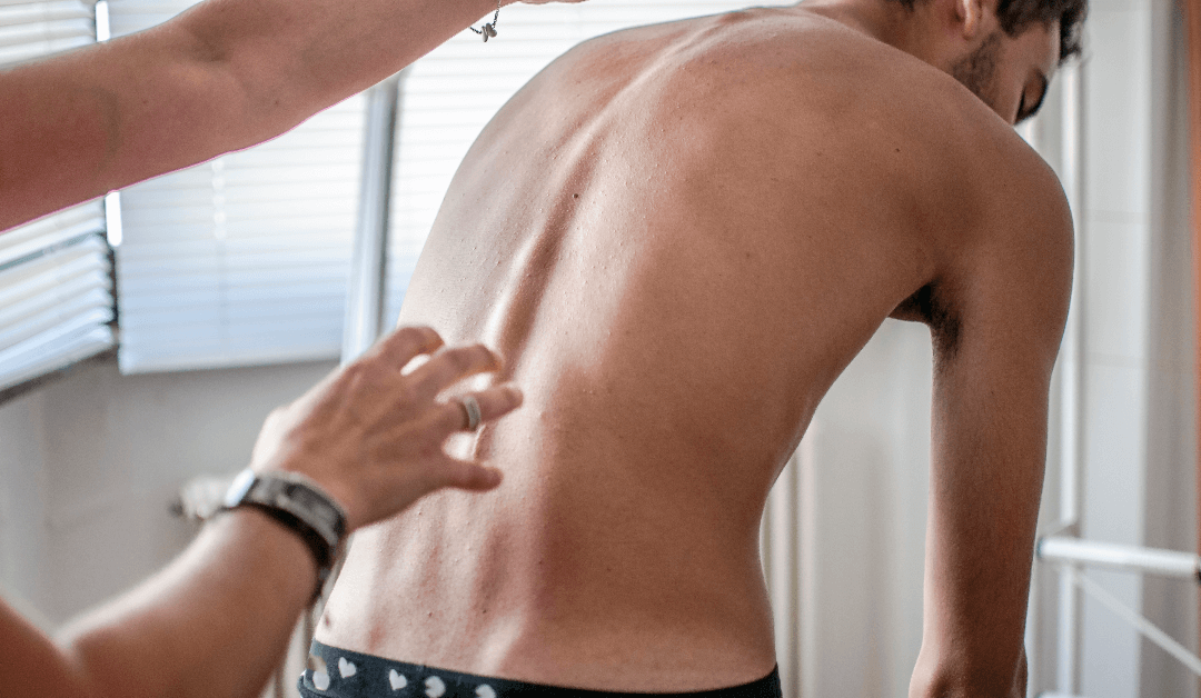 Scoliosis Treatment From A Chiropractor Can Help