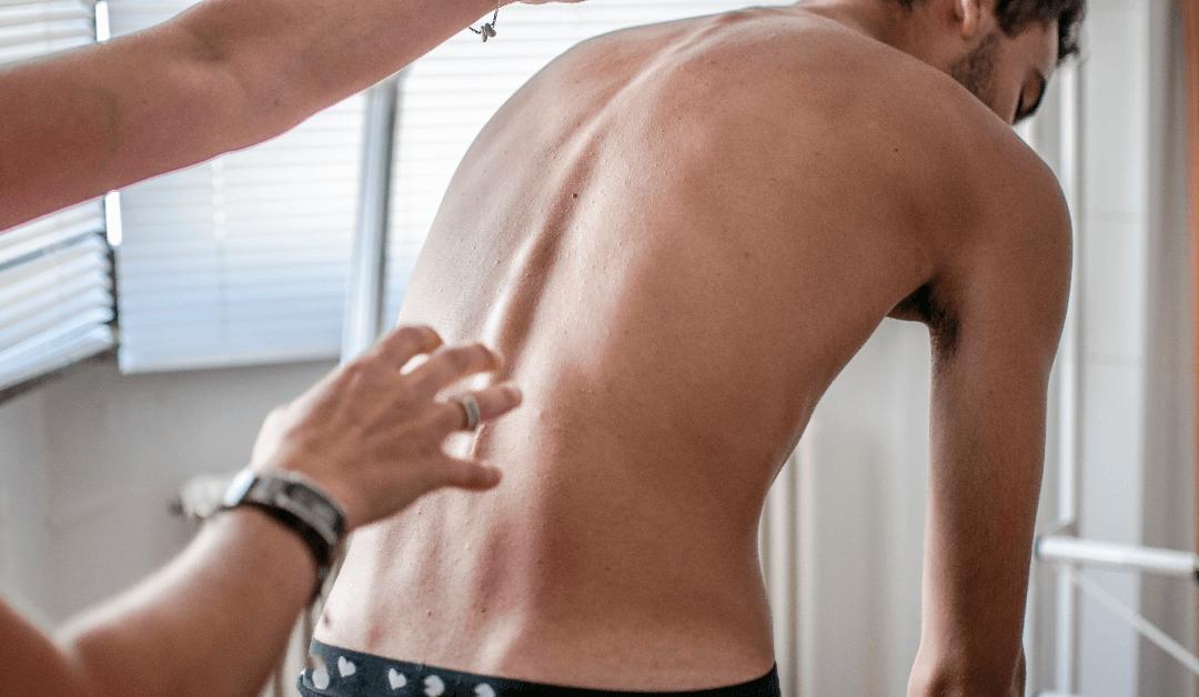 scoliosis treatment in orlando